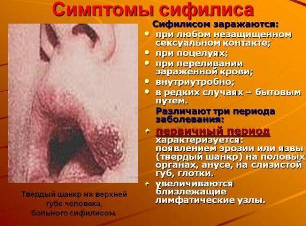 Пути передачи и симптомы сифилиса