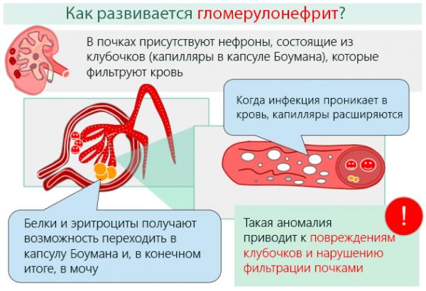 Развитие гломерулонефрита
