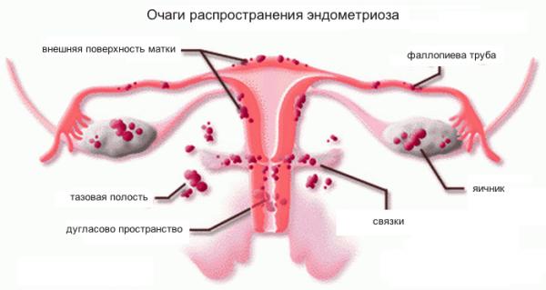 Расположения очагов эндометриоза