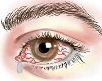 Симптомы офтальмологических заболеваний