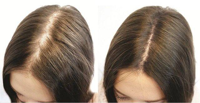 Средства против выпадения волос у женщин