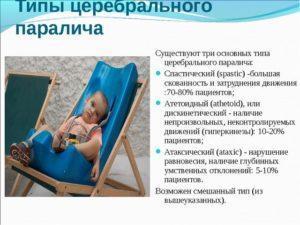 Типы церебрального паралича