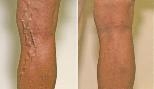 Как лечить варикозное расширение вен ?
