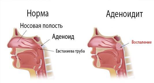 Воспаление при аденоидите