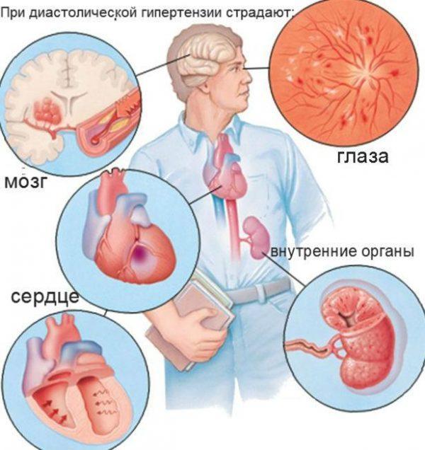 Органы которые страдают от диастолической гипертензии