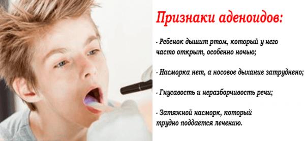 Признаки аденоидов у ребенка