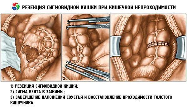 Резекция при кишечной непроходимости