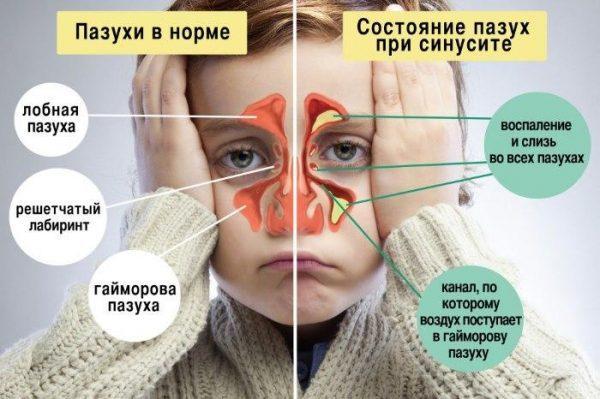 Состояние пазух у детей при синусите