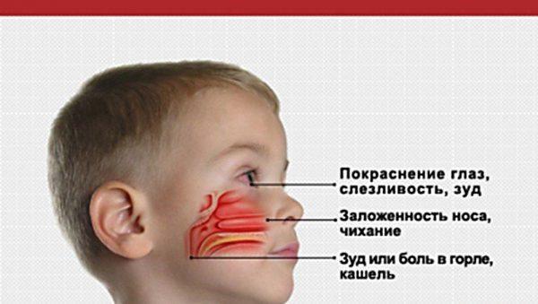 Аллергический ринит возникает как реакция местного иммунитета на белок-антиген