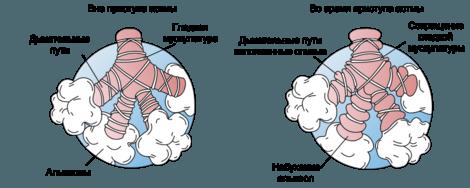 Бронхи при приступе астмы