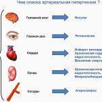 Вегето-сосудистая дистония по гипертоническому типу
