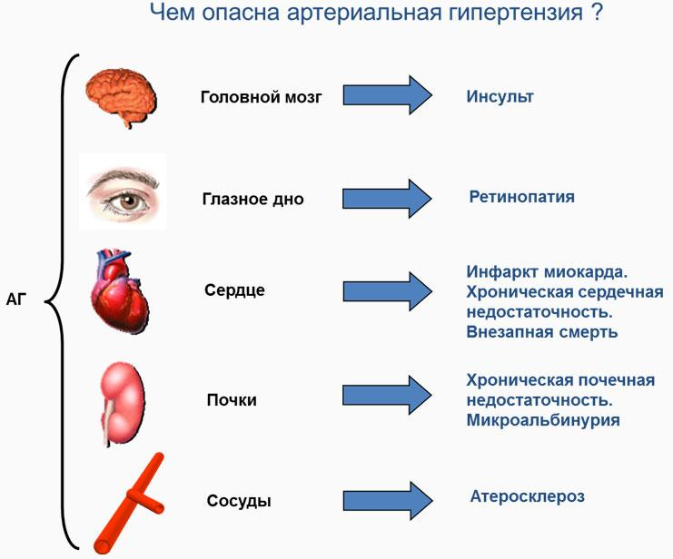 Вегето-сосудистая дистония по гипертоническому типу: причины ...