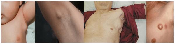 Воспаление подмышечных лимфоузлов