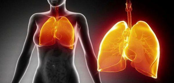 Гипостатическая пневмония