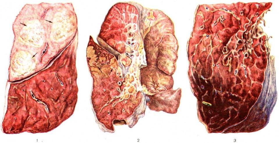 Застойная пневмония - причины, симптомы, диагностика и лечение