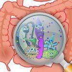 Дисбактериоз: симптомы у взрослых