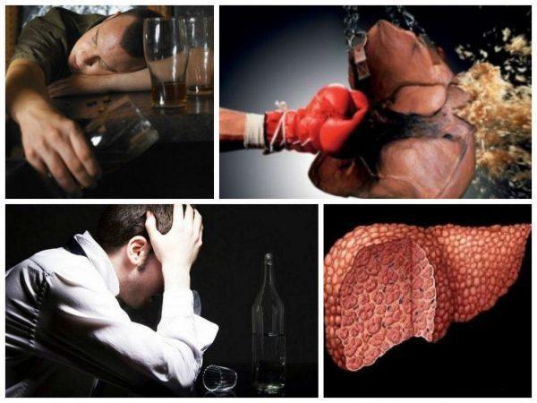 Из-за чего развивается алкогольный гепатит