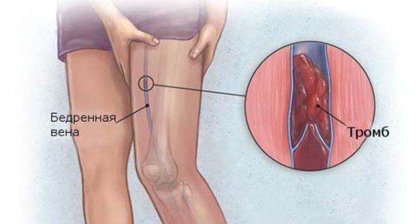 Илеофеморальный тромбоз бедренной вены