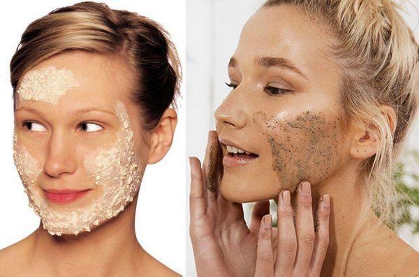 Как избавиться от шрамов после прыщей на лице