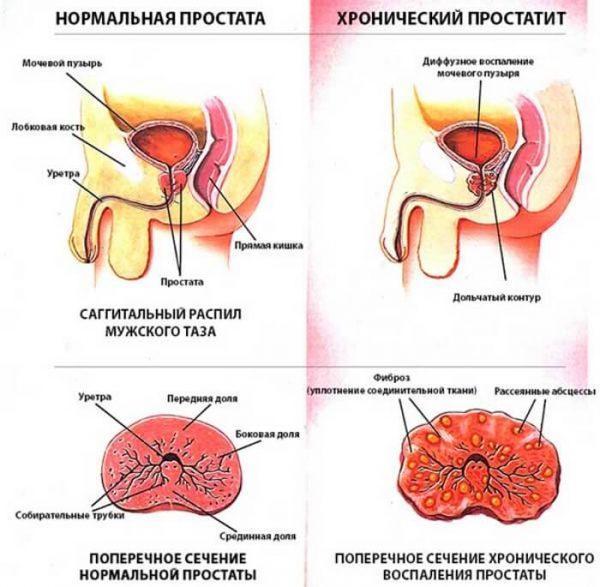 Как проявляется хронический простатит у мужчин