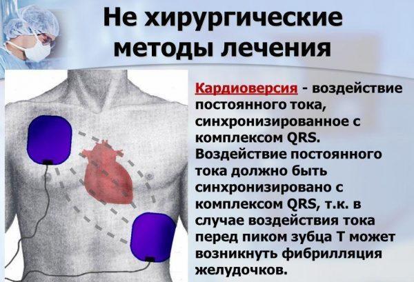 Кардиоверсия
