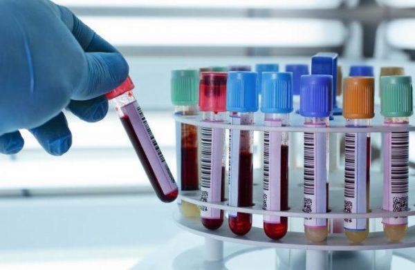 Квантифероновый тест на туберкулез