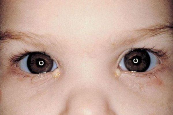 Конъюнктивит у ребенка в 2 года