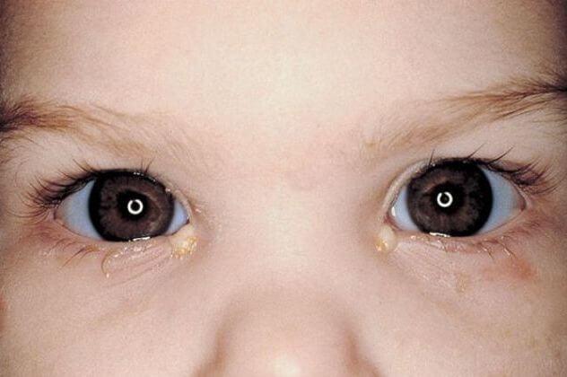 лечение конъюнктивита у детей 3 лет