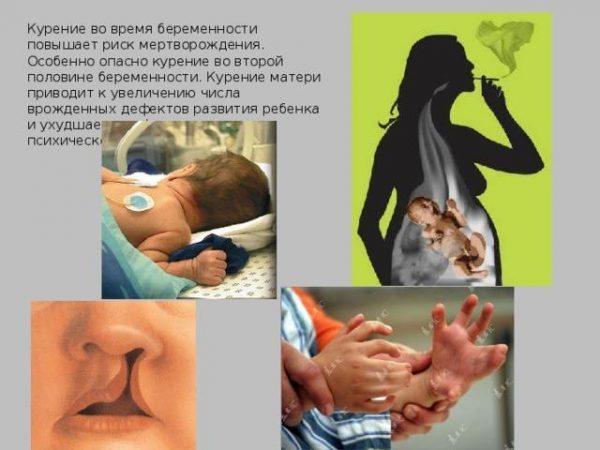 Курение в период беременности
