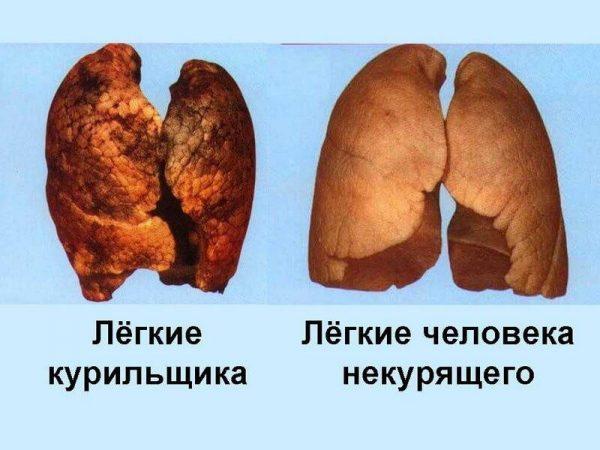 Легкие курильщика и некурящего человека