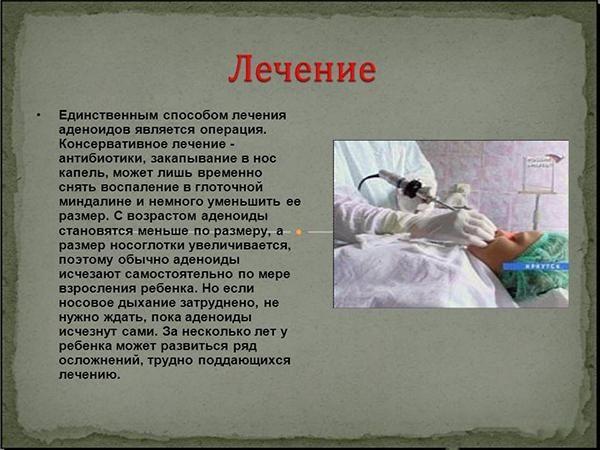 Лечение воспаления аденоидов