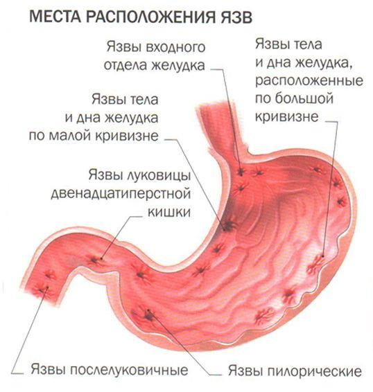 Места расположения язв желудка и кишечника