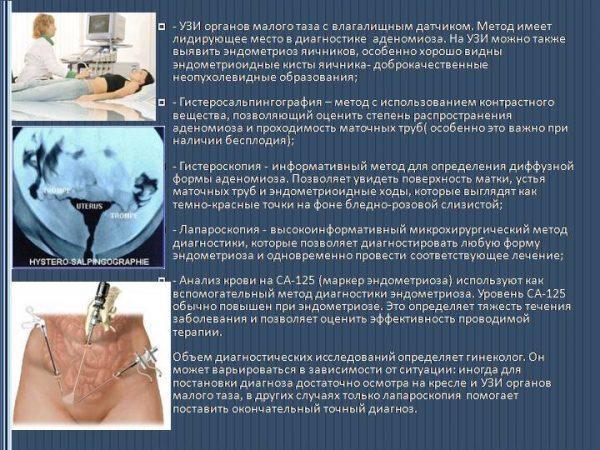 Методы обследования при эндометриозе