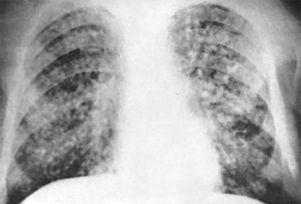 Милиарный туберкулез легких - рентген