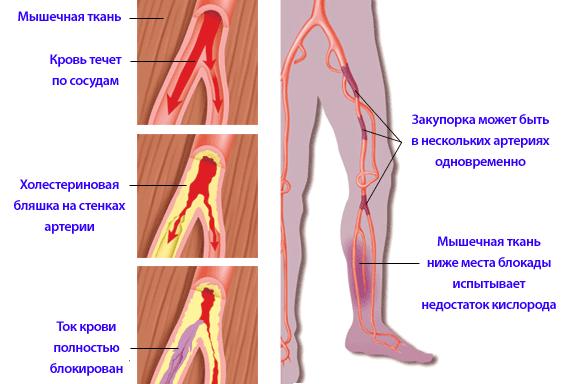 Облитерирующий атеросклероз нижних конечностей