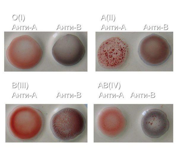 Определение групп крови по системе АВ0 при помощи цоликлонов Анти-А и Анти-В