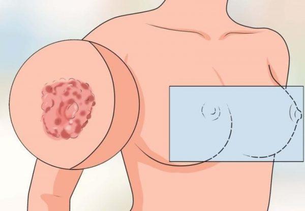Ореолы груди при молочнице