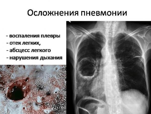 Осложнения пневмонии