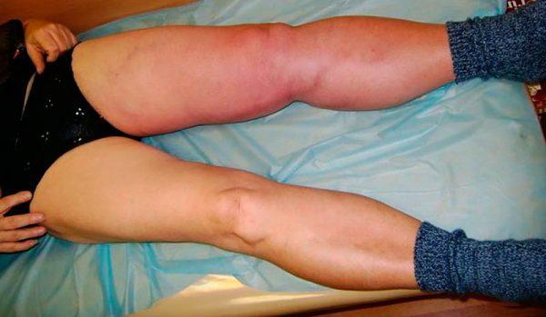 Основными симптомами являются изменение окраски, отек и боль в нижних конечностях