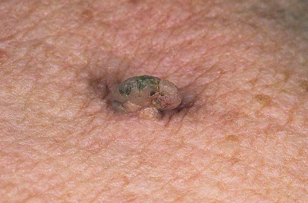 Папилломавирус у человека
