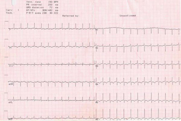 Пароксизмальная наджелудочковая тахикардия - Tachycardia supraventricularis paroxismalis