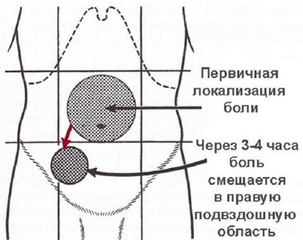 Первичная боль при аппендиците