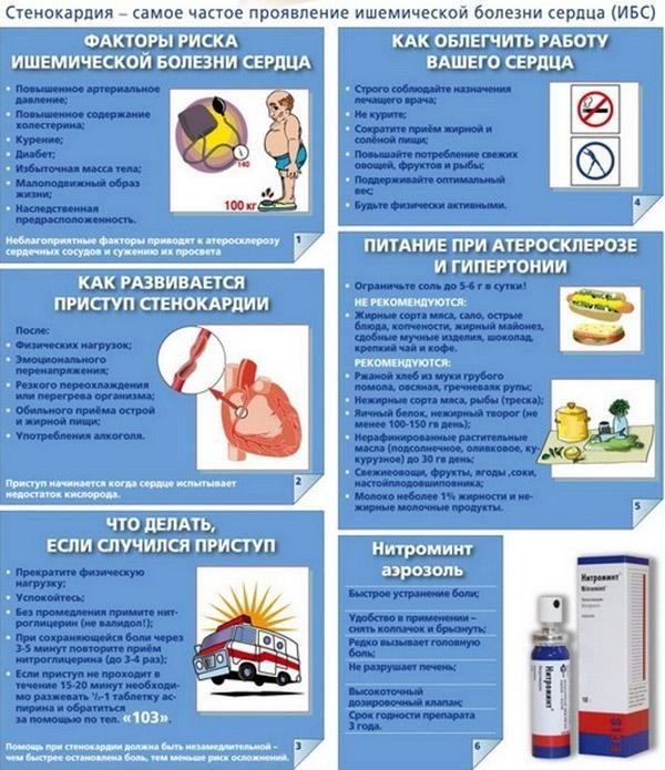 Полезная информация о стенокардии