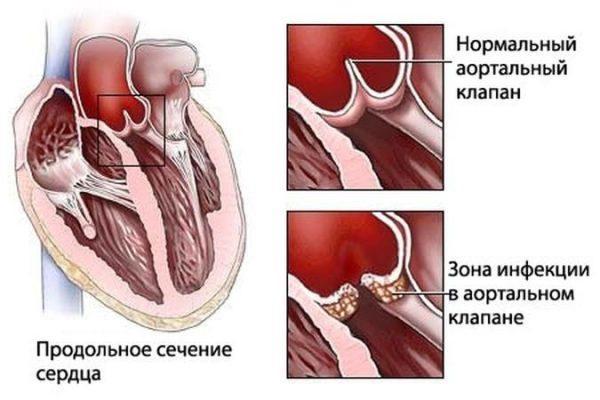 Поражение инфекцией. Ревматизм сердца