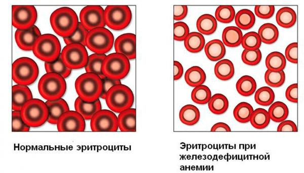 Почему понижается гемоглобин у детей