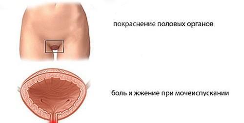 Признаки аллергии на семенную жидкость