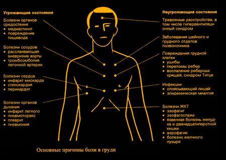 Причины болей в грудной клетке в зависимости от локализации