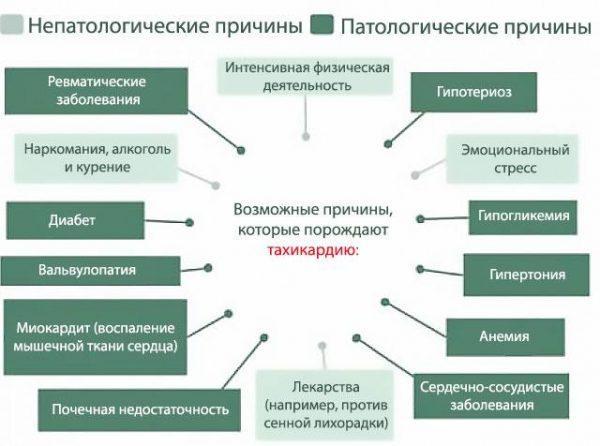 Причины возникновения тахикардии