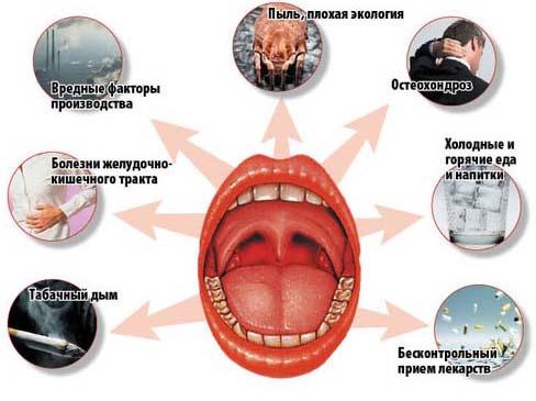 Причины возникновения тонзиллита