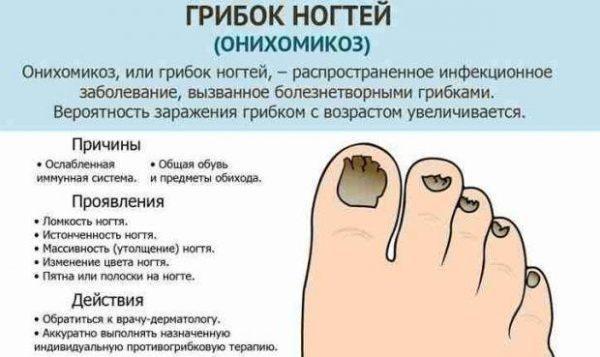 Причины, симптомы и лечение грибка ногтей
